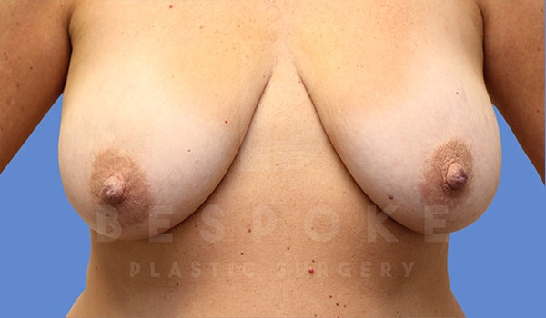 Breast Lift With Implants Gallery - Patient 5089517 - Image 3