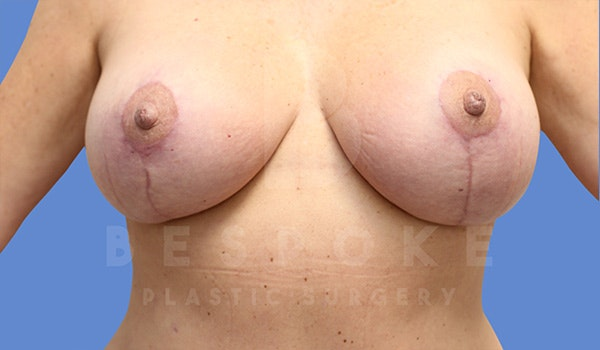 Breast Lift With Implants Gallery - Patient 5089517 - Image 4