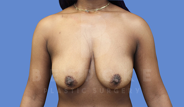 Breast Lift With Implants Gallery - Patient 5089518 - Image 12