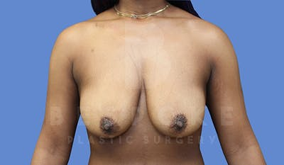 Breast Lift With Implants Gallery - Patient 5089518 - Image 1
