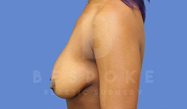 Breast Lift With Implants Gallery - Patient 5089518 - Image 5