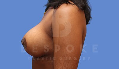 Breast Lift With Implants Gallery - Patient 5089518 - Image 6