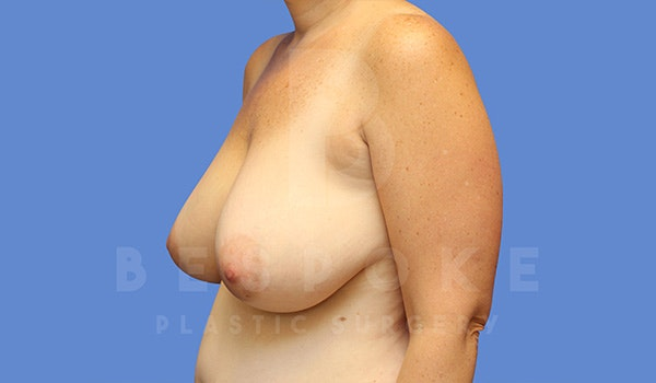 Breast Lift With Implants Gallery - Patient 5089519 - Image 3
