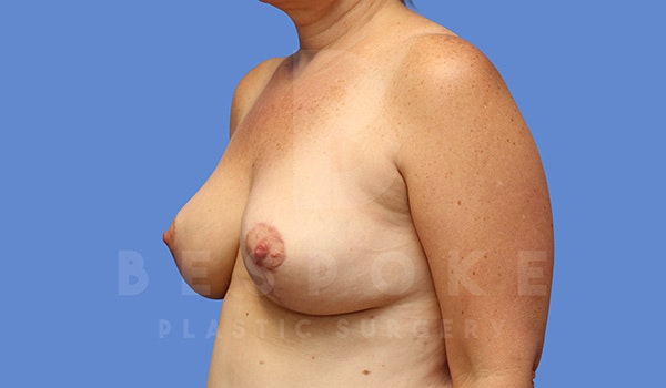 Breast Lift With Implants Gallery - Patient 5089519 - Image 4