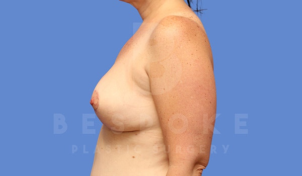 Breast Lift With Implants Gallery - Patient 5089519 - Image 6