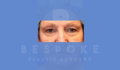 Eyelid Surgery Gallery - Patient 5089842 - Image 1