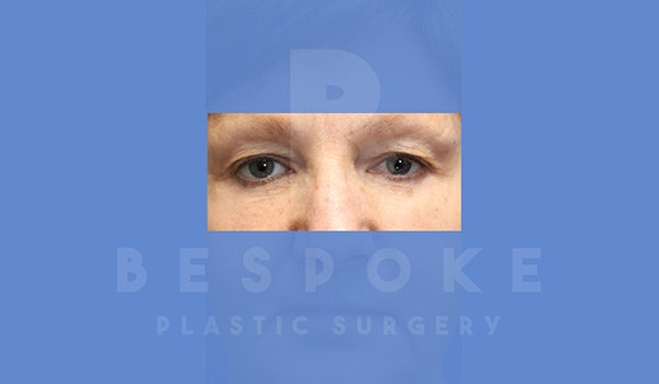 Eyelid Surgery Gallery - Patient 5089842 - Image 2