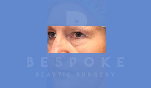 Eyelid Surgery Gallery - Patient 5089842 - Image 3