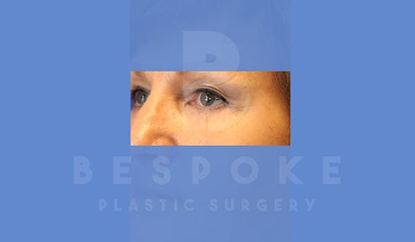 Eyelid Surgery Gallery - Patient 5089842 - Image 4