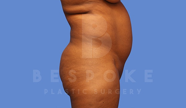 Liposuction Gallery - Patient 5089891 - Image 3
