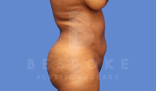 Liposuction Gallery - Patient 5089891 - Image 4
