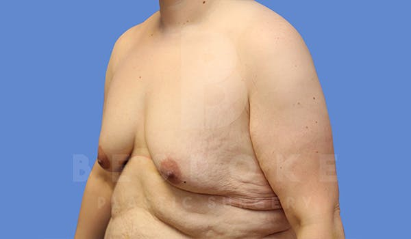 Massive Weight Loss Gallery - Patient 5089951 - Image 3