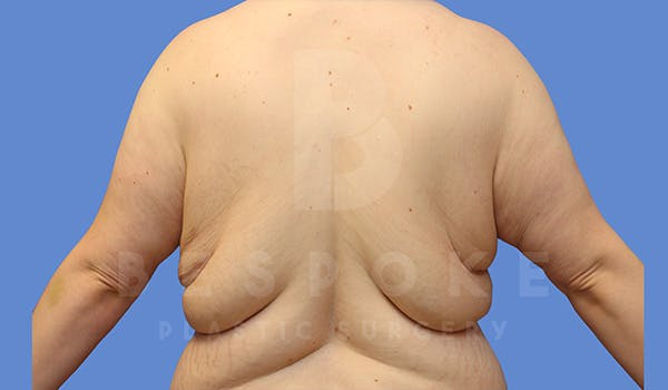 Massive Weight Loss Gallery - Patient 5089953 - Image 1