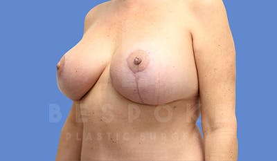 Mommy Makeover Gallery - Patient 5090011 - Image 2