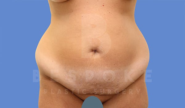 Mommy Makeover Gallery - Patient 5090011 - Image 5