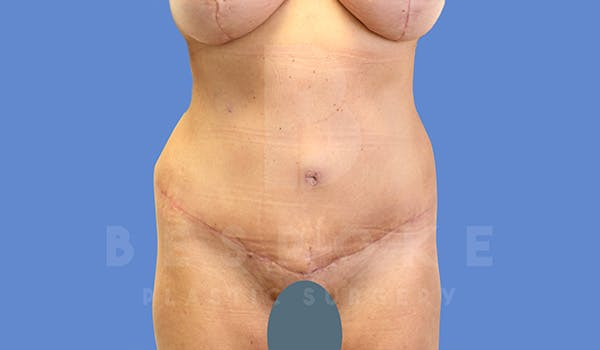Mommy Makeover Gallery - Patient 5090011 - Image 6