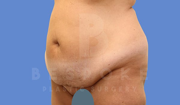 Mommy Makeover Gallery - Patient 5090011 - Image 7