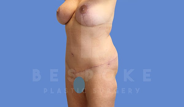 Mommy Makeover Gallery - Patient 5090011 - Image 8