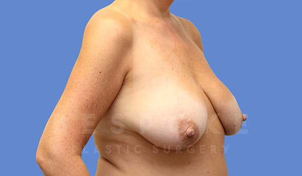 Mommy Makeover Gallery - Patient 5090011 - Image 9