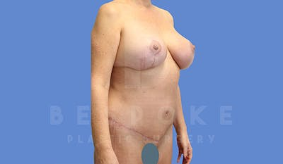 Mommy Makeover Gallery - Patient 5090011 - Image 10