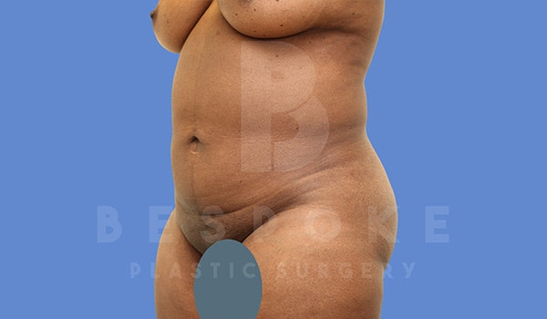 Petite Tuck Gallery - Patient 5090112 - Image 3