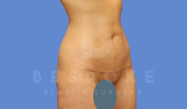 Petite Tuck Gallery - Patient 5090113 - Image 2