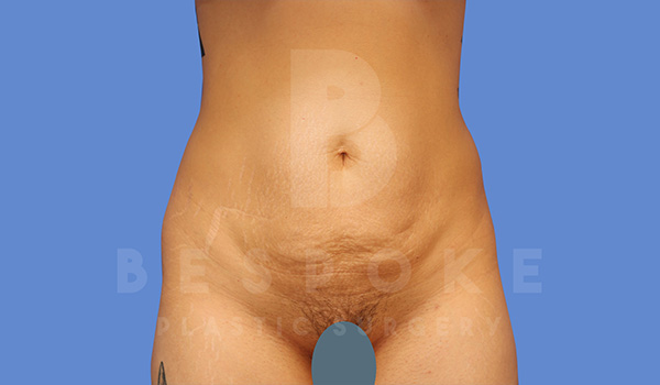 Tummy Tuck Gallery - Patient 5090185 - Image 20