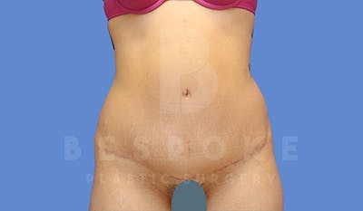 Tummy Tuck Gallery - Patient 5090185 - Image 2