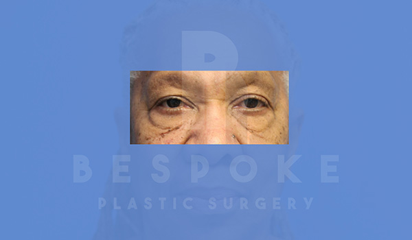 Eyelid Surgery Gallery - Patient 5113940 - Image 9