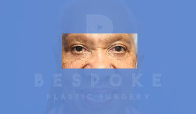 Eyelid Surgery Gallery - Patient 5113940 - Image 2