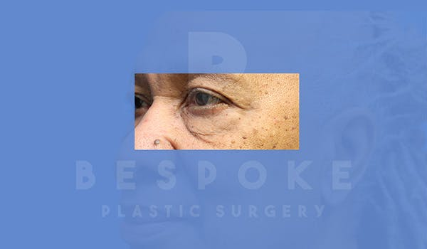 Eyelid Surgery Gallery - Patient 5113940 - Image 3