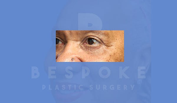Eyelid Surgery Gallery - Patient 5113940 - Image 4