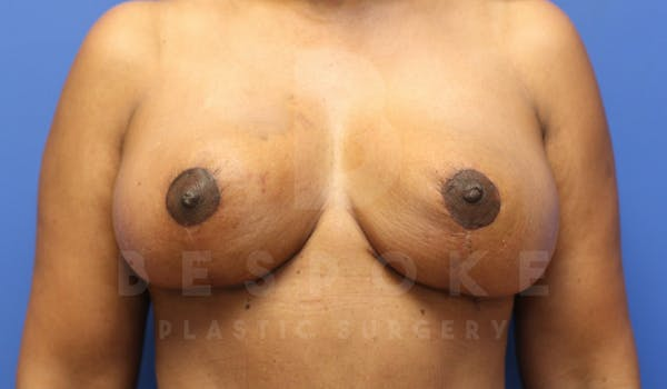 Breast Lift With Implants Gallery - Patient 5114566 - Image 2