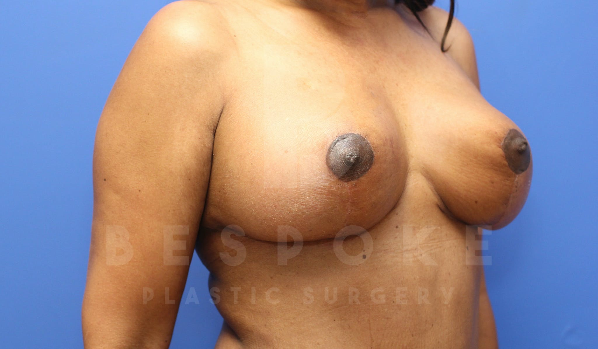Breast Lift With Implants Gallery - Patient 5114566 - Image 4