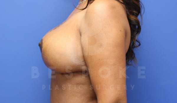 Breast Lift With Implants Gallery - Patient 5114566 - Image 6
