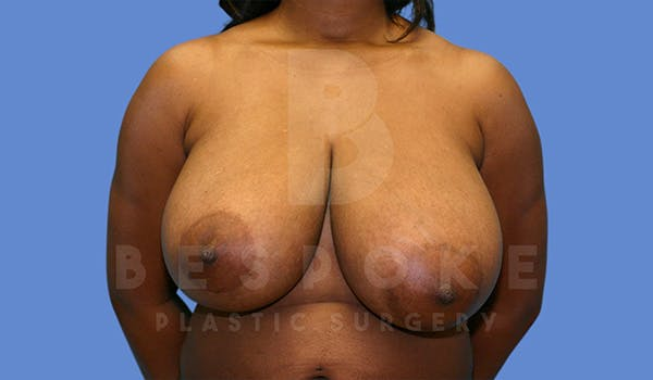 Breast Reduction Gallery - Patient 5164603 - Image 1