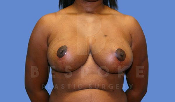 Breast Reduction Gallery - Patient 5164603 - Image 2