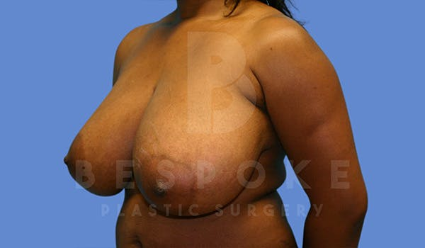 Breast Reduction Gallery - Patient 5164603 - Image 3