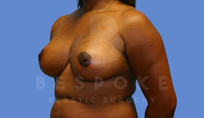 Breast Reduction Gallery - Patient 5164603 - Image 4