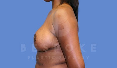 Breast Reduction Gallery - Patient 5164603 - Image 6