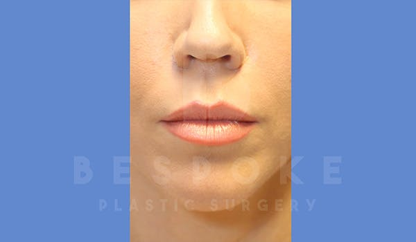 Facial Fat Grafting Gallery - Patient 5174672 - Image 2