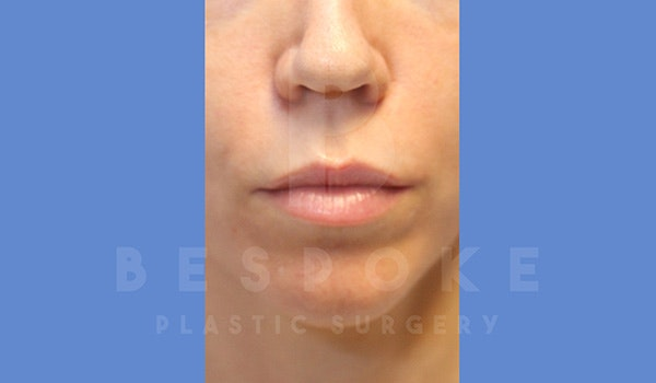 Facial Fat Grafting Gallery - Patient 5174672 - Image 1