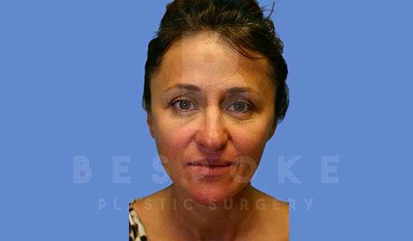 Fillers Gallery - Patient 5776238 - Image 1