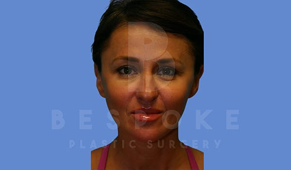 Fillers Gallery - Patient 5776238 - Image 2