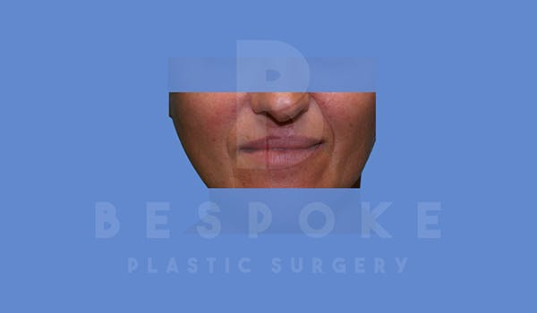 Fillers Gallery - Patient 5776239 - Image 1