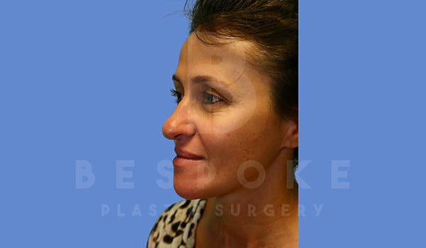 Fillers Gallery - Patient 5776238 - Image 3