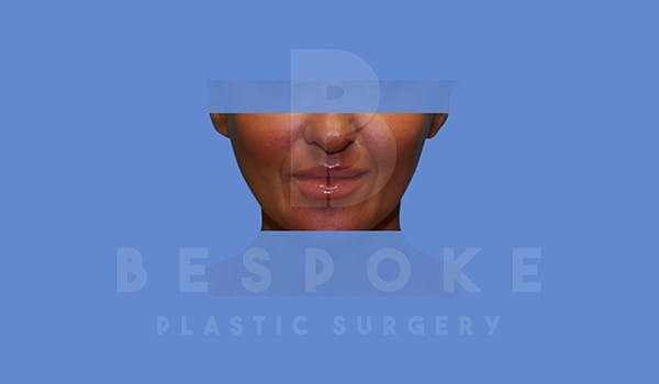 Fillers Gallery - Patient 5776239 - Image 2