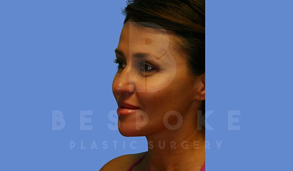 Fillers Gallery - Patient 5776238 - Image 4