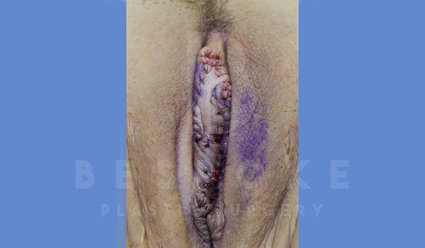 Labiaplasty Gallery - Patient 5776240 - Image 2