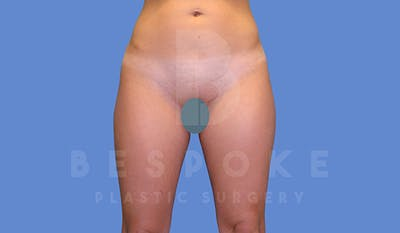 Liposuction Gallery - Patient 5776245 - Image 1